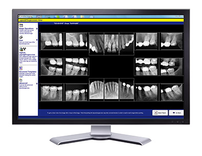 A Screen Showing a Digital X-Ray